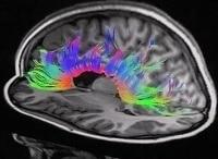 Мозг Вторая вселенная в 15:20 на канале