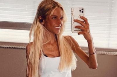Популярный блогер умерла в 24 года от анорексии
